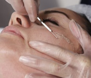 Dermaplanning anti-aging treatments