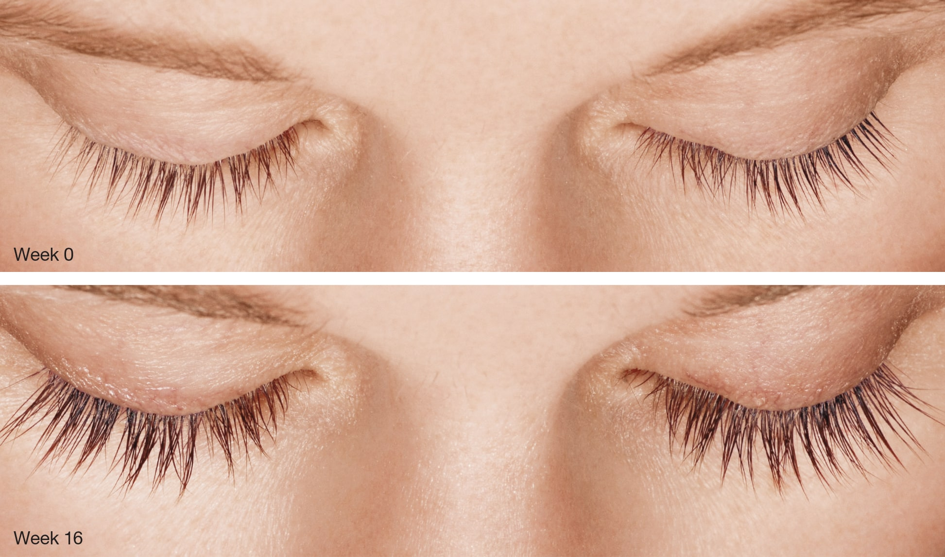 Latisse longer eyelashes - LIV Medical Weight Loss & Aesthetics in Boynton Beach