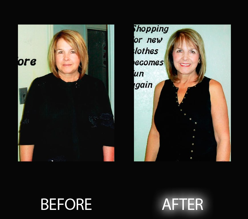 boynton beach weight loss testimonies at livmedicalweightlossaesthetics.com